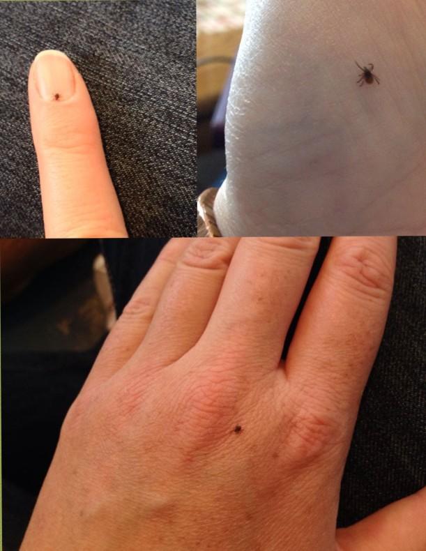 Deer ticks are tiny!